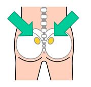 画像:骨髄採取